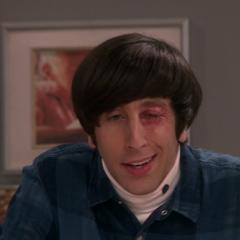 Howard caught Pink Eye.