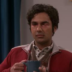 Raj has Pink Eye.