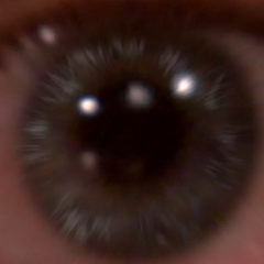 Sheldon's eyeball.