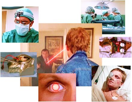 Bionic operation Michael