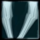 Huesos rotos