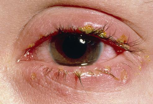 File:PRinc rm photo of crust on eyelid.jpg