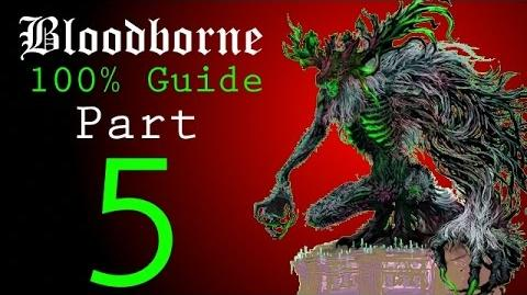 Bloodborne - Walkthrough 5 - Hemwick Charnel Lane, Witch of Hemwick Boss Battle