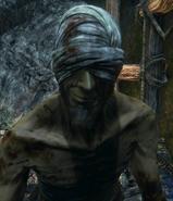 Afflicted Beggar №4
