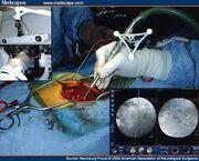 Imageguidedsurgery