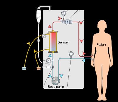 hemodialysis unit bmet wiki fandom powered by wikia rh bmet wikia com fresenius dialysis machine 4008s service manual fresenius 2008h dialysis machine service manual