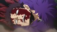 Overhaul defeated (Anime)