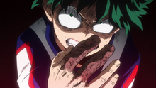 Izuku injured facing Shoto