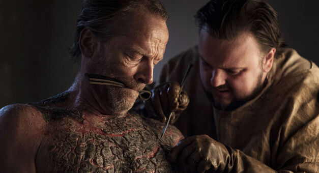 Sam Tarley and Jorah Mormont perform grayscale surgery