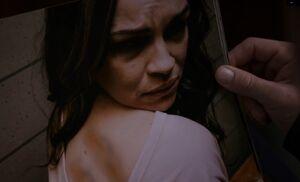 S03E11-Violet bruises