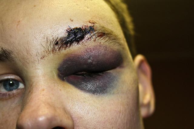 File:Bruised.jpg