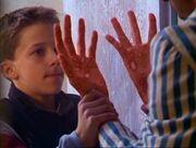 Ari incinerating his wrist