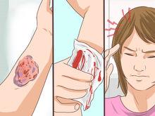 Hemophilia on skin