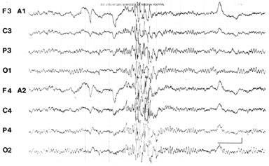 Seizure EEG