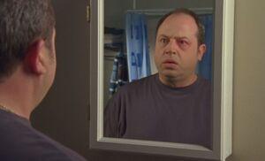 S05E14-Brent pink eye