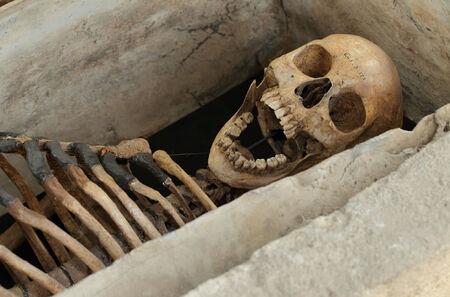 Arbury-skeleton