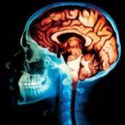 Brain from xray