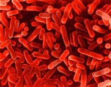 Bacteria-legionella