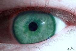 My teal eye