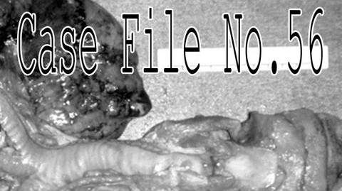 """Case File No.56"" by Fear Of-0"