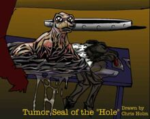 Tumor Seal-1