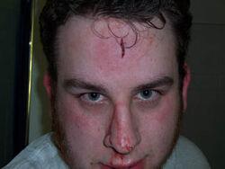 Garrett-wound