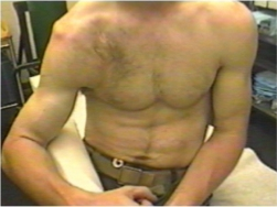File:Dislocated-shoulder.jpg