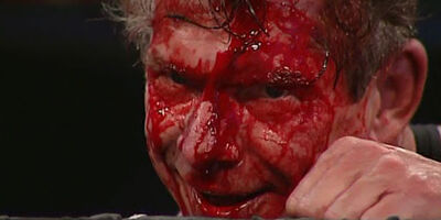 Vince-mcmahon-blood