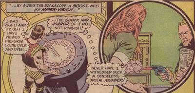 Vartox time scanscope