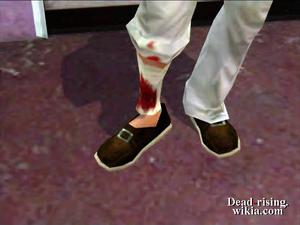 Dead rising leah's hurt leg