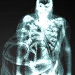Беременный просвеченный рентгеновскими лучами