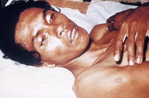 Adult cholera patient