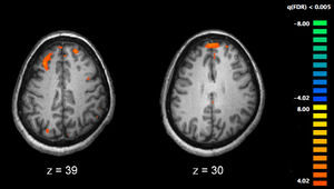 Schizophrenia fMRI working memory