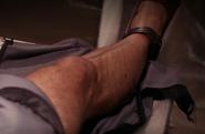 13 Brunner Ankle