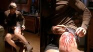 Gunshot wound on Dexter's leg