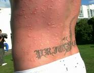 Pritch stung