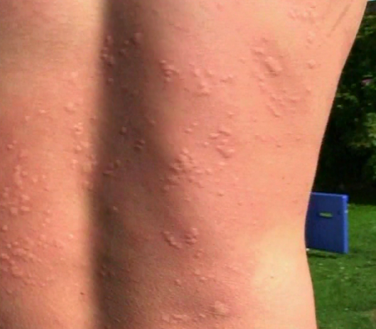File:Stings on back.png
