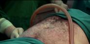 Liposuction9