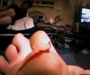 Cut foot