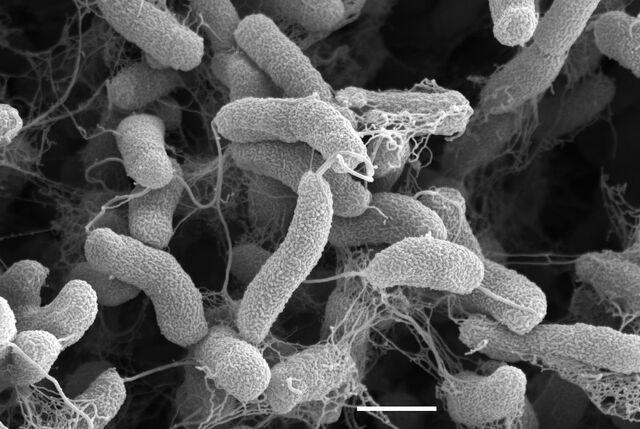 File:EM Leo 7-02b Vibrio cholerae JPG.jpg
