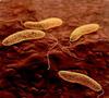 Vibrio cholerae DEADLY