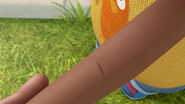 Donny's pricked arm