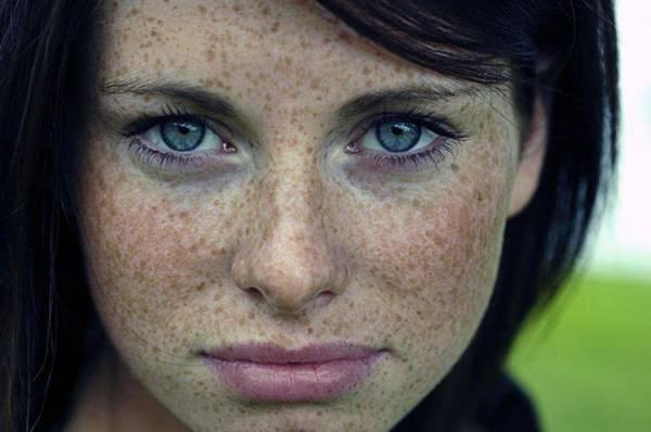 File:Freckles 01.jpg