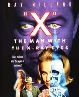 El hombre con ojos de rayos X