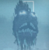 Isla flotante en el diente