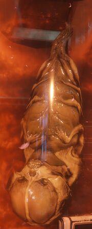 Fetus2016-2