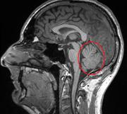 Cerebellum - Kleinhirn - MRT