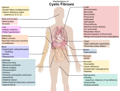 File:500px-Cystic fibrosis manifestations.png
