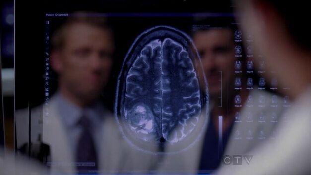grey's anatomy brain scan