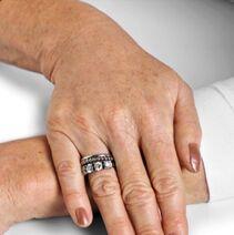 Dłonie z przebarwieniami